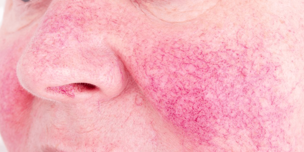 Shows an example of broken blood vessels on the cheeks and nose of a person