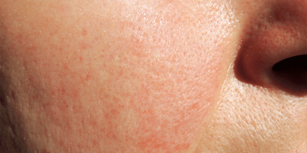 Shows Rosacea condition on a patient