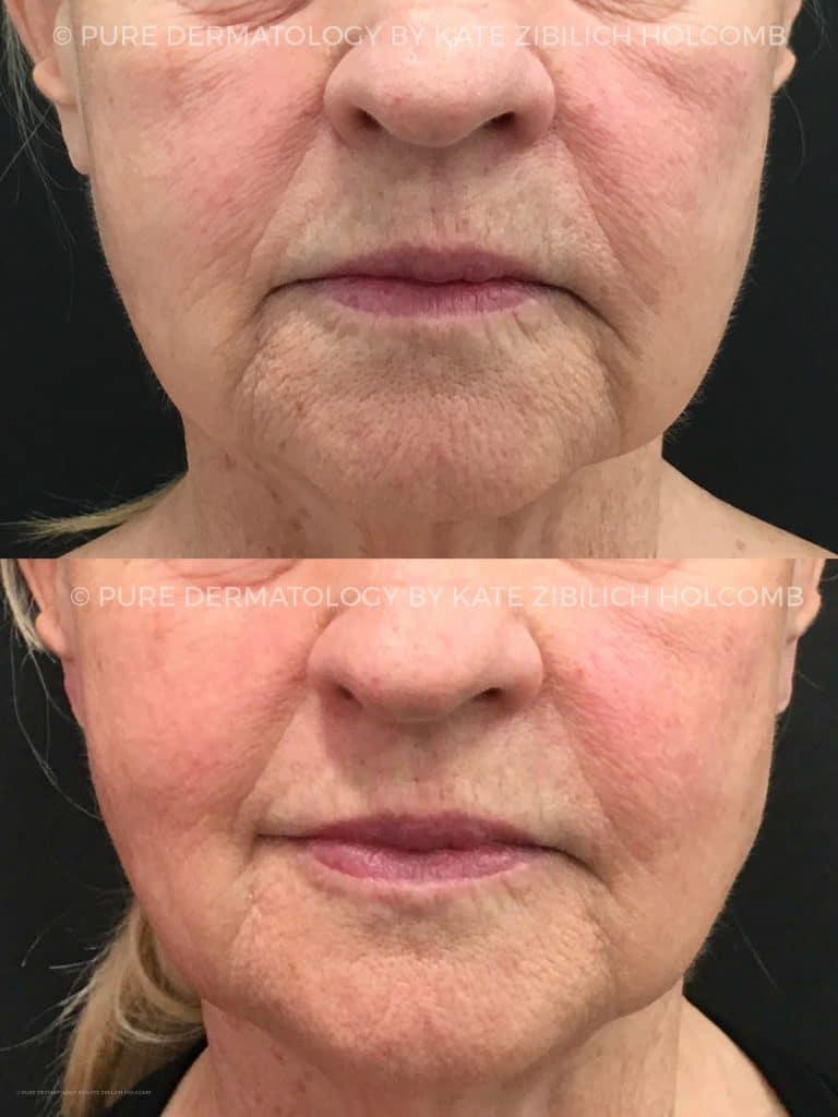 secret-8-weeks-after-1-treatment-1