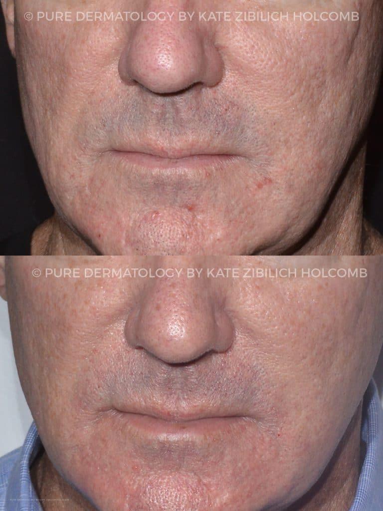 secret-8-weeks-after-2-treatments-Copy