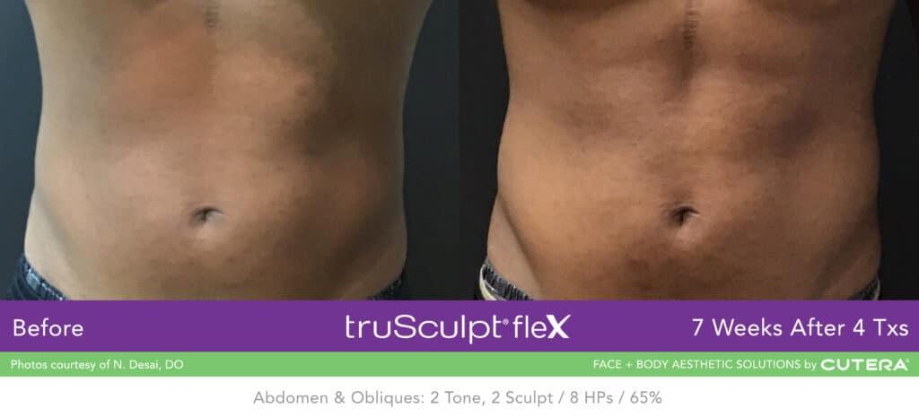truSculpt-flex-B-A-Desai-A-1024x465