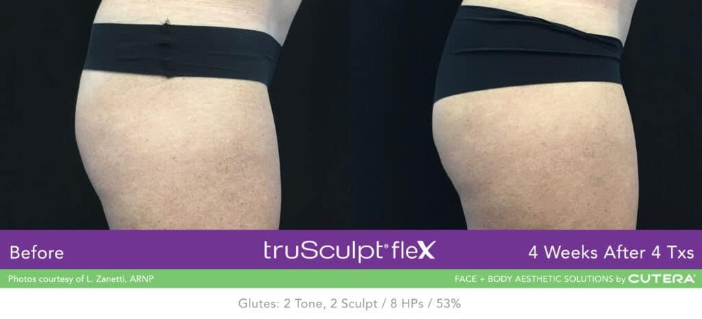 truSculpt-flex-B-A-Zanetti-B2-1024x465