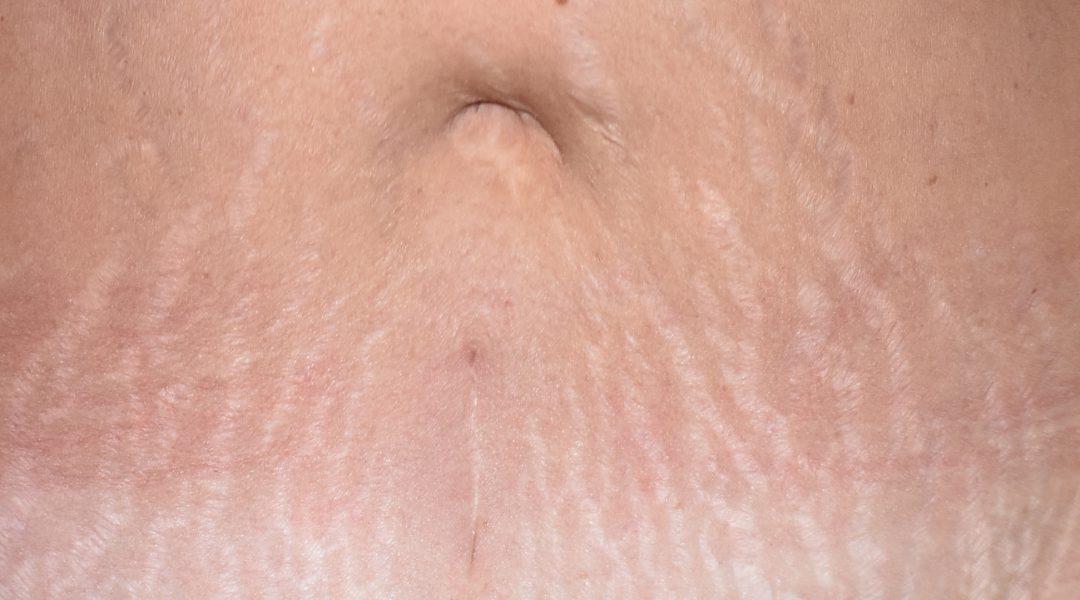 DSC_0015-8-stretch marks
