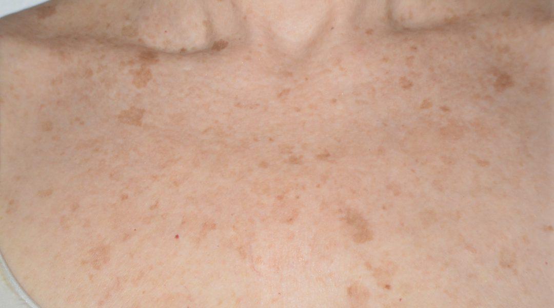 seborrheic keratoses(1)